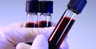 Empresa é condenada por realizar exame toxicológico sem consentimento do empregado