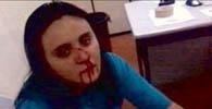 OAB/CE pede cassação de policial acusado de agredir advogada