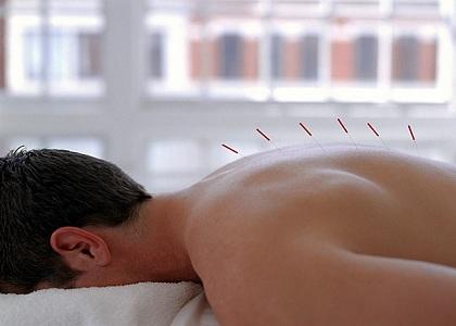 Psicólogos não podem praticar acupuntura