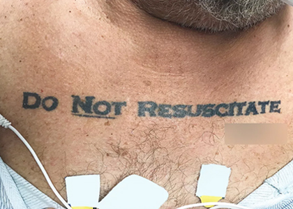 O pleito no peito (Do not resuscitate)
