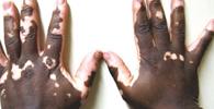 """Trabalhador que sofreu ofensas por ter vitiligo será indenizado: """"brincadeira cruel de mau gosto"""""""