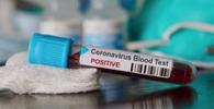 Coronavírus: TJ/RJ suspende audiências por 60 dias